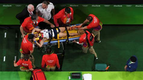 french gymnast suffers horrific leg injury after vault olympian suffers gruesome leg injury during vault