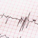 heart racing  night common   treatment options