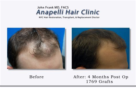 hair transplant month by month pictures hair transplant case study 6 hair transplant nyc