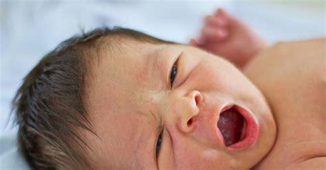 neonati in neonato i piccoli difetti della pelle non sono