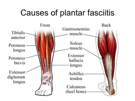 plantar fasciitis symptoms causes and treatment
