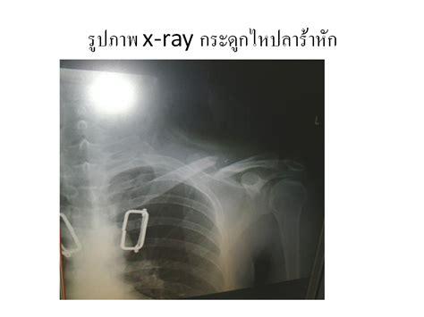 Rodek Ry 12 4 Dvc knowledge managment phraphuthabat hospital donut splint