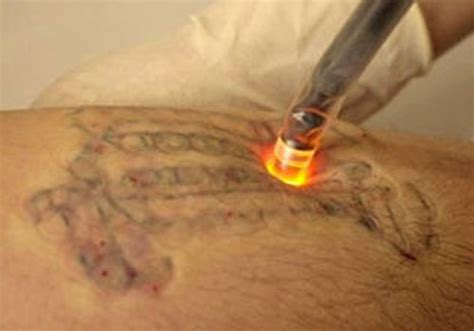 how tattoo laser removal works how laser removal works