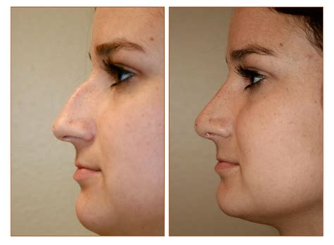 surgery cost cost of rhinoplasty in florida cosmetic plastic surgery