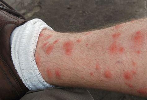 alfa img showing gt red bites on leg