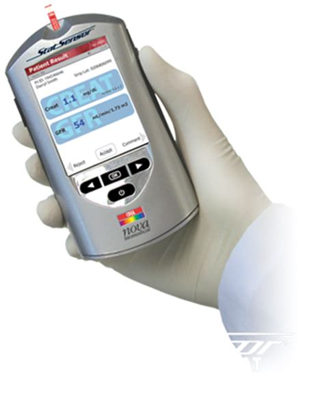creatinine units biomedical weltweit f 252 hrend in der biosensor technologie
