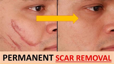 best medicine to remove scars home remedy to remove scars quickly and naturally health