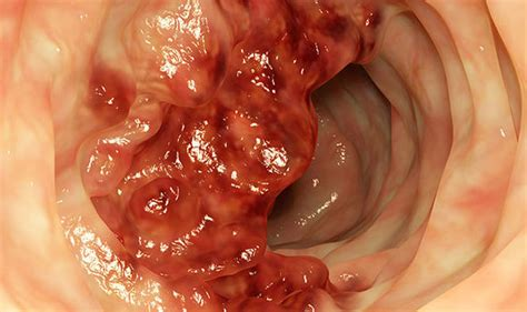 Does Blood In Stool Colon Cancer by Bowel Cancer Symptoms Black Stool Could Be A Sign What