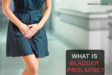 prolapse and bladder weakness jean hailes what is bladder prolapse image