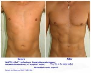 Augmentation by Breast Implants Breast Augmentation Lift Breast Share