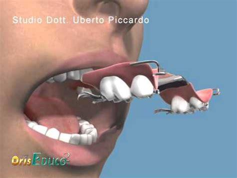 protesi dentarie parziali mobili dentista genova implantologia protesi mobile parziale