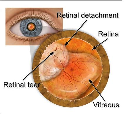 retinal detachment curtain detached retina signs symptoms of retinal detachment