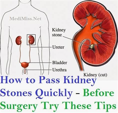 How Fast Can I Detox My Kidneys Before Blood Work by How To Pass Kidney Stones Quickly Before Surgery Try