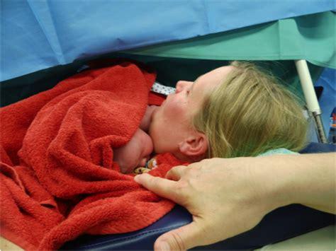 wie muss das baby zur geburt liegen geburt durch den kaiserschnitt ein erfahrungsbericht