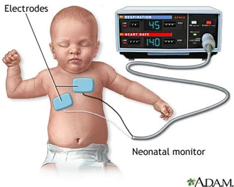 infant breathing monitor when to use a baby breathing monitor