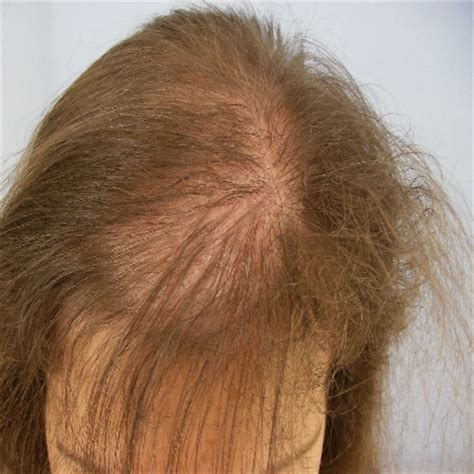 best haircuts for alopecia best haircut for alopecia alopecia quick weave pinteres