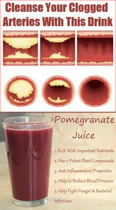 Blood Clots During Detox by 83 Best Nattokinase Remove The Clots Blood Thinners