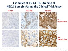 Pembrolizumab Also Search For Trial Yields Positive Data On Pembrolizumab For Lung Cancer National Cancer Institute
