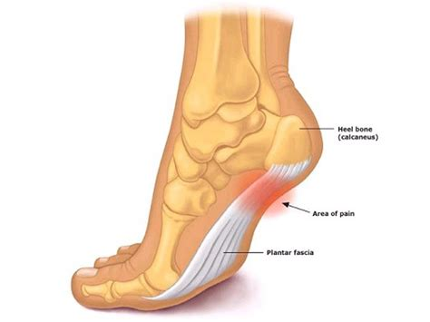 managing plantar fasciitis first aid 4 sport blog