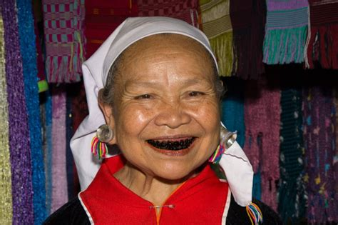 black teeth ohaguro and yaeba japanese cosmetic dentistry