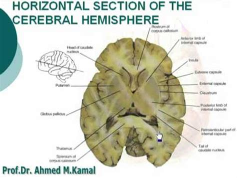 60 horizontal section of the cerebral hemisphere