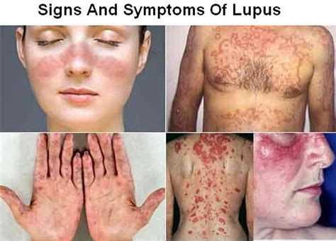 lupus systemic lupus erythematosus sle causes sign