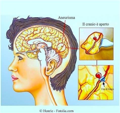 kinking carotide interna sintomi ictus cerebrale ischemico o emorragico cause e riabilitazione