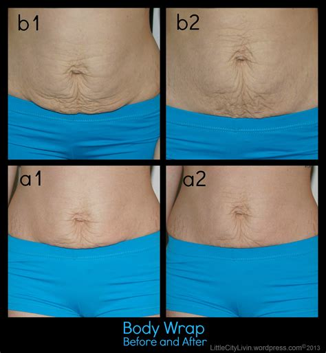 Wide Stomach Detox Wrap by Postpartum Belly Before And After Www Pixshark