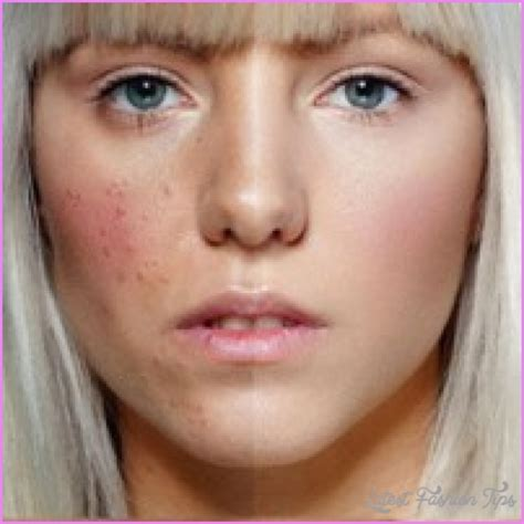 best acne best makeup for cystic acne latestfashiontips