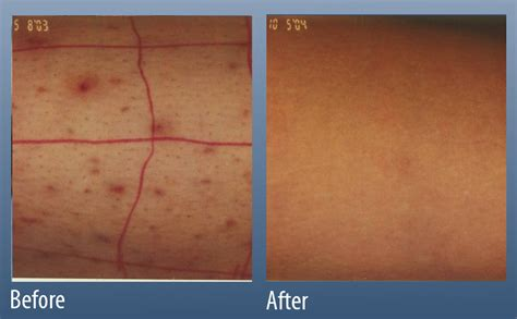 folliculitis main line for laser surgery in ardmore pa