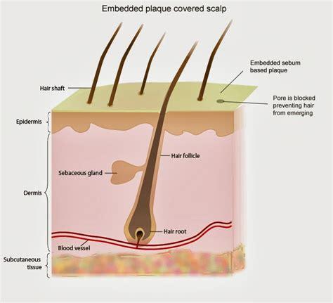 sebum on scalp how to make hair grow why clogged hair follicle on scalp