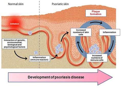 psoriasi guttata alimentazione psoriasi prevenzione e alimentazione psoriasi360