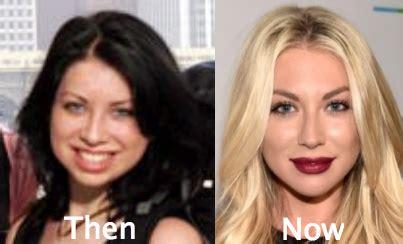 katie vanderpump ruleslastic surgertr stassi schroeder plastic surgery how much work has she