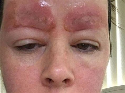 tattoo eyebrow infection skincare laser clinic point cook sues over eyebrow tattoo