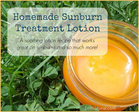 home remedies for sunburn a diy sunburn treatment lotion