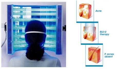 dermatology blue light treatment blu u blue photodynamic therapy livonia dermatology