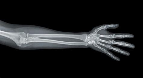 Names of the Bones in the Human Leg & Arm   LIVESTRONG.COM