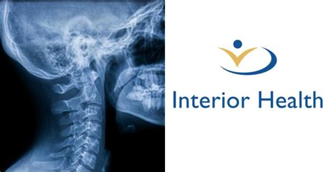 Interior Health by Interior Health Warns Thousands Of X Rays Read In B C S