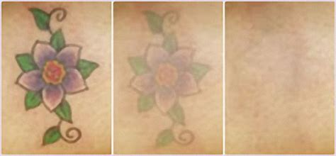tattoo removal pictures after one session perfect skin with laser skincare