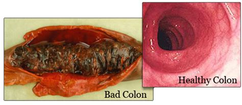 Cara Buang Kerak Usus cik shiraz punya or bad colon