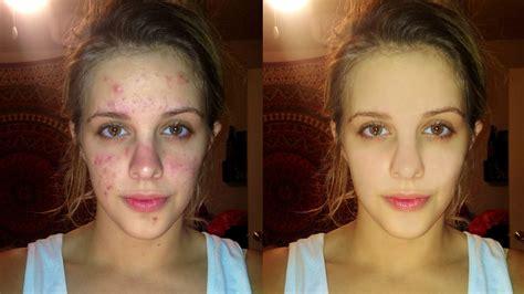 adobe photoshop tutorial face retouching skin retouching face clean up photoshop tutorial youtube