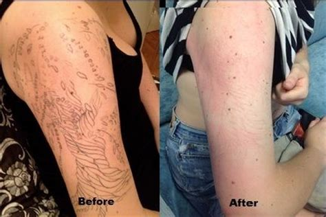 laser tattoo removal jacksonville nc before and after picosure treatment call carolina laser