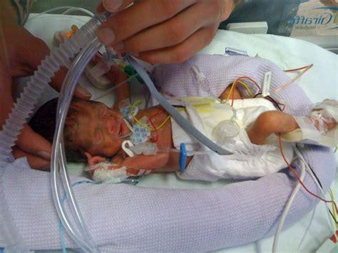 twins born at 25 weeks 30 week preemie twins www pixshark com images