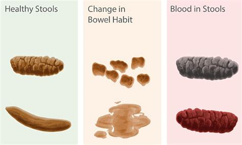 Is Green Stool A Sign Of Cancer by Poo Chart Reveals What S Normal And What Could Be A