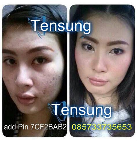 tensung cream pemutih kulit wajah alami surabaya makasar
