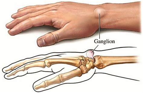5 home remedies for ganglion cysts health