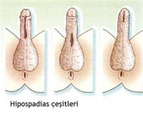 peygamber suenneti hipospadias uzmantv