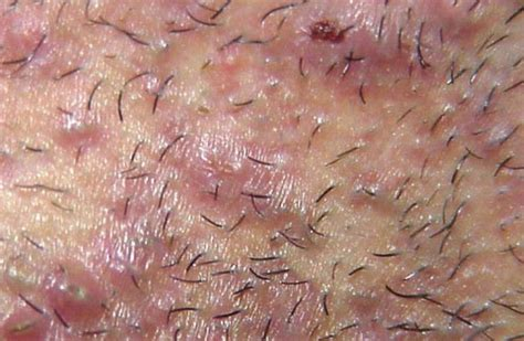 ingrown armpit hair pictures symptoms painful bumps armpit bumps painful red from shaving and treatments