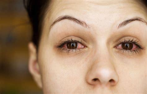 mengenali infeksi mata akibat penggunaan lensa kontak