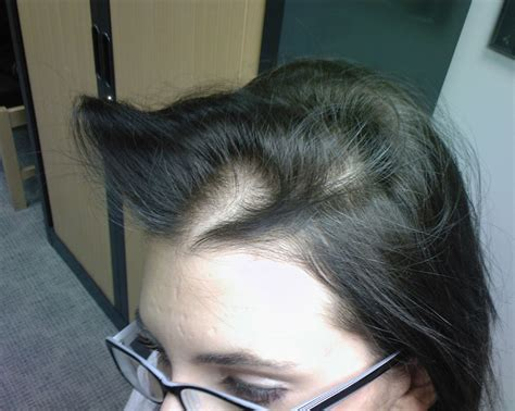 female pattern baldness image related keywords suggestions for help female pattern
